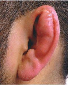 How to Avoid Cauliflower Ear BJJ