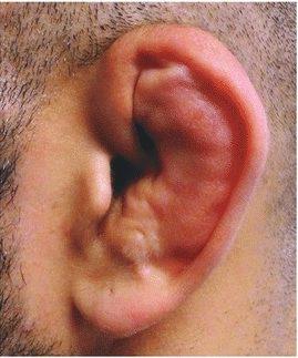 Cauliflower Ear BJJ